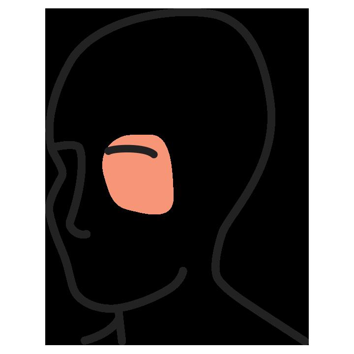 huvudvärk främre huvudet